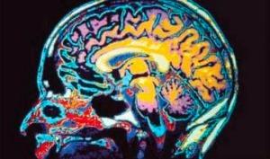 cerebro_batalla